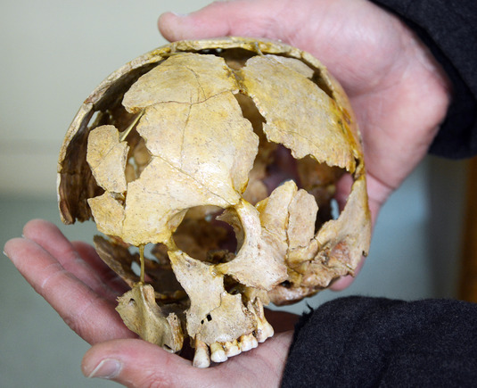 The shattered skull of a child, found during excavations in the Ofnet Cave near Nördlingen, as it appears after restoration.