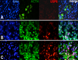 The USP8 mutations identified in adenomas of the pituitary gland lead to overproduction of ACTH. Panel A: ACTH-producing cells in a normal gland. The other panels show cells non-mutant (B) or mutant (C) for USP8. (S. Sbiera, Universität Würzburg)
