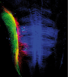 Fluorescence image showing two nerves (stained in red and green), which are responsible for transmitting information from the hair cells to the brain and from neurons (small green dots) that alter hair cell sensitivity, respectively.