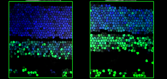 Retina sections: Note that the level of the modified DNA base 5hmC (green) increases from the second (left) to the third (right) post-natal week.