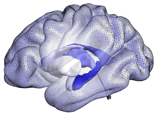 A computational model of the brain that forms the basis of the BrainPrint, a system for representing the whole brain based on the shape, rather than the size of structures. The hippocampus is labeled in dark blue, the amygdala in light blue, and anterior to the latter is the putamen (white). Source: Christian Wachinger