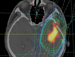 Irradiation planning of a glioblastoma. Source: LMU Medical Center