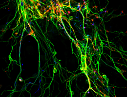 Neurons generated by direct reprogramming. Source: Götz Group