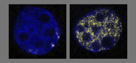 The figure shows a normal embryo (left) and an embryo with additional expression of SUV4-20 (right). While the cells without histone modification duplicate (few yellow cells) and progress to cell division, cells with expression of SUV4-20 are trapped in a duplication state (numerous yellow cells) but cannot progress to cell division. (Helmholtz Zentrum München, Andre Eid)