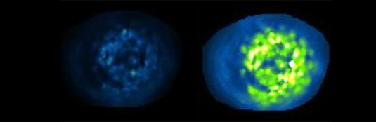 Islet cells in the pancreas infused with PhotoETP: Illumination with blue light (right panel) clearly induces activity. The image on the left shows the same islet prior to exposure to blue light. Source: D. Hodson