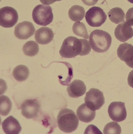 The pathogen: The unicellular protozoan Trypanosoma cruzi, surrounded by red blood cells. Source: Division of Infectious Diseases and Tropical Medicine, LMU Medical Center
