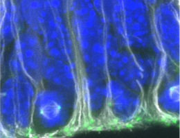 Neural progenitor cells (green) in the lateral ganglionic eminence (LGE), the region in the developing brain that produces the majority of adult neural stem cells. Source: Sven Falk