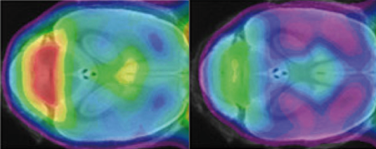 A minimal change in the TREM2 gene results in a marked reduction in the phagocytic activity of microglial cells in the brain of mutant mice (green, on the right) relative to the control (yellow and red, on the left). Source: Haass Lab.