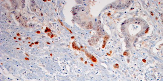 The leading edge of an invasive colon carcinoma. Note that the infiltrating, hypoxic tumor cells express high levels of PPP1R11 (red). Source: Institute of Pathology, LMU Munich