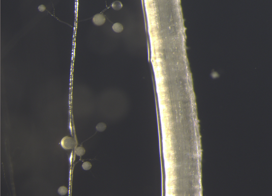 Hyphae and spores of the mycorrhizal fungus Rhizophagus irregularis on a plant root. Note the nuclei and lipid droplets in the spores. Scale bar = 500 µm. Photo: Andreas Keymer