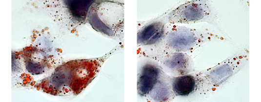 Uptake of human LDL by HepG2 cells in presence (left) or absence (right) of HNP1. LDL uptake was quantified following Oil Red O staining. Image: Nicole Paulin, LMU