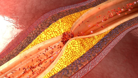 Coronary artery plaque rupture and thrombus formation. Image: 7activestudio/fotolia.com