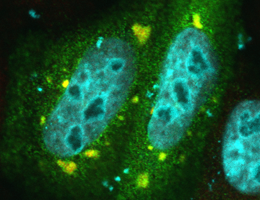 Defective binding of the FUS protein (green) to Transportin causes an accumulation of FUS in stress granules (red) in the cytoplasm. Cell nuclei are stained blue. (Source: Dr. Saskia Hutten)