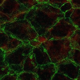 Image from a confocal microscope showing so-called pin-wheel structure of the lateral wall of the lateral ventricle: ENaC-positive adult neural stem cell (red) surrounded by ependymal cells. Source:  Helmholtz Zentrum München