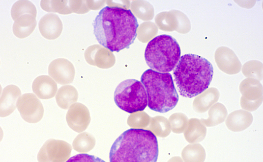 Peripheral blood smear showing immature blast cells with cytoplasmic granules, indicative of acute myeloid leukemia (AML). Source: Leukemia Diagnostics Laboratory, LMU Medical Center.