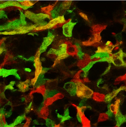 Multiple sclerosis lesion in the spinal cord. Inflammatory phagocytes appear in red, anti-inflammatory phagocytes in green and intermediate phenotypes in yellow. Picture: M. Kerschensteiner