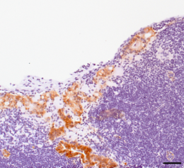 Mir34a/p53-deficient metastatic colon cancer cells invading into a lymph node. Brown staining detects high levels of nuclear beta-catenin protein, which is specific for epithelial cancer cells. Blue: (nuclei of) immune cells. (LMU/Munich, H. Hermeking)