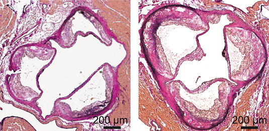 Dicer knockout in macrophages (right) accelerates atherosclerosis. Source: Yuanyuan Wei, LMU.