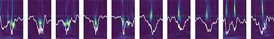 Spectrogram of neuronal field potentials in the hippocampus. Source: Leibold et al.
